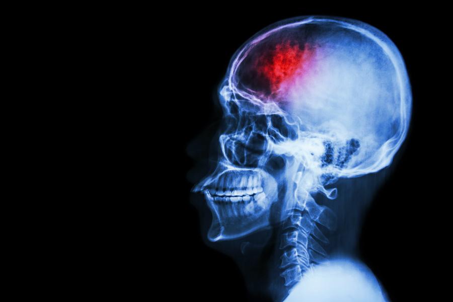 bigstock Stroke cerebrovascular acci 78569471